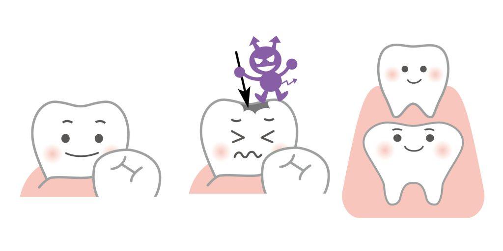 子どもの歯は虫歯になりやすい