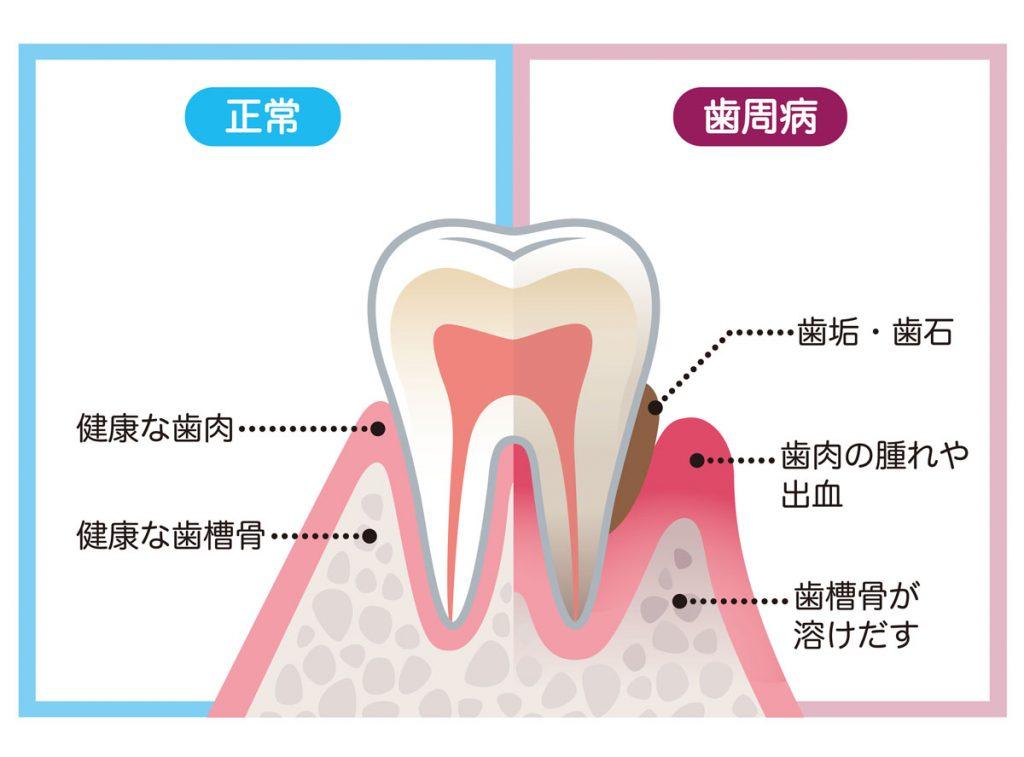 歯周病はどんな病気?
