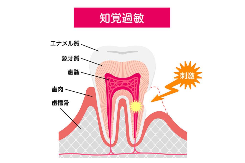 歯がしみる原因