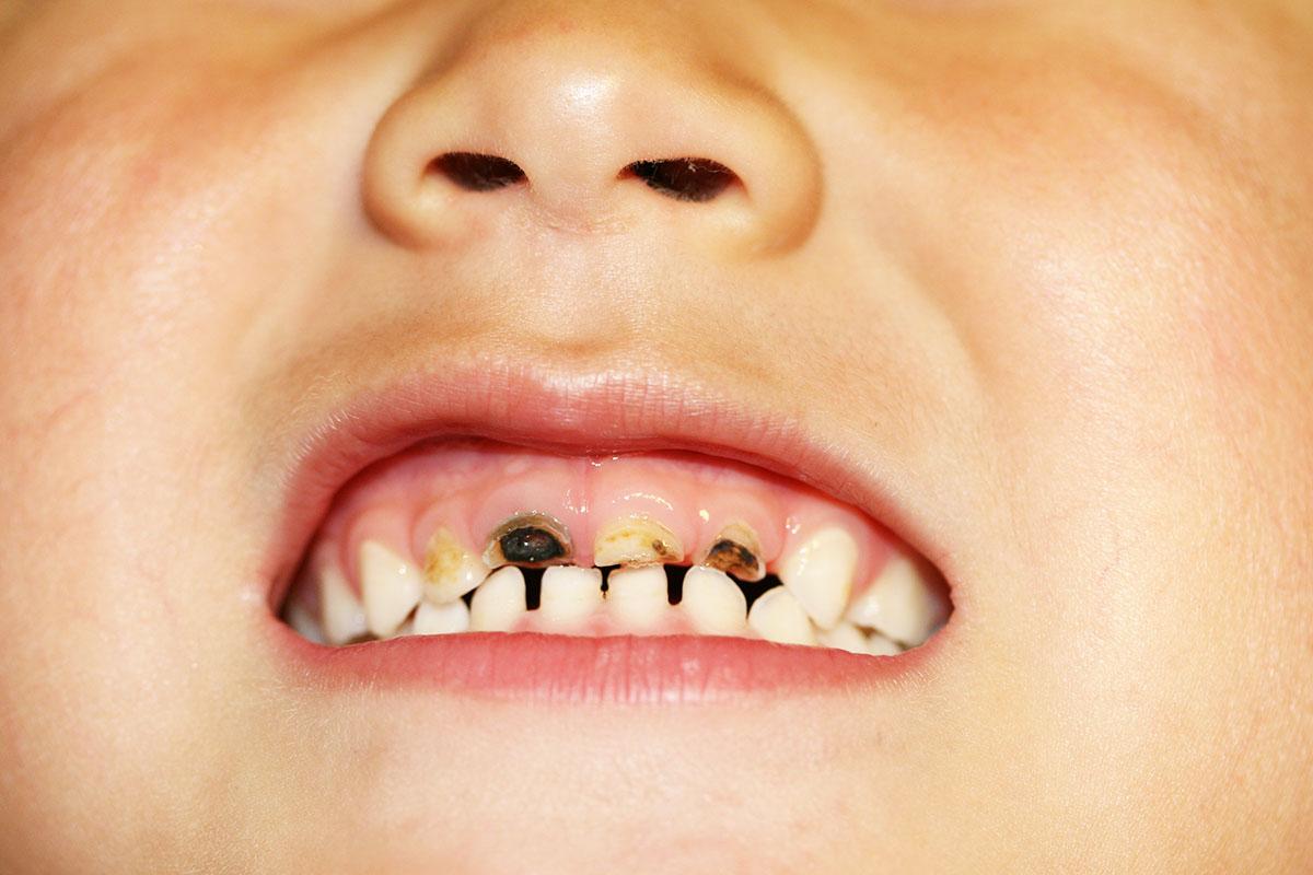 子どもの歯が黒くなる4つの原因と対策