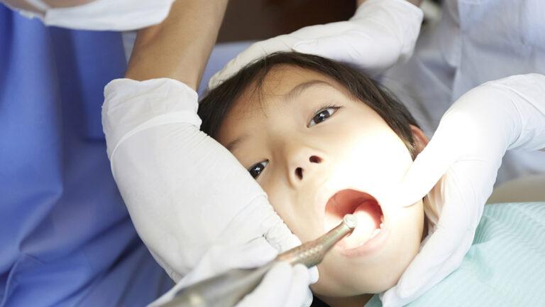 子どもの歯が黒いのは虫歯?着色?4つの原因と対策