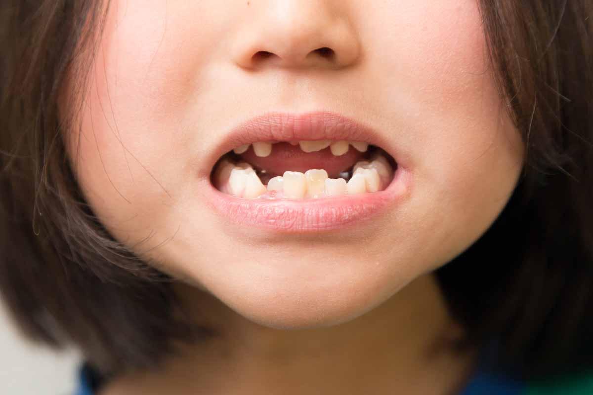 子どもの歯並び