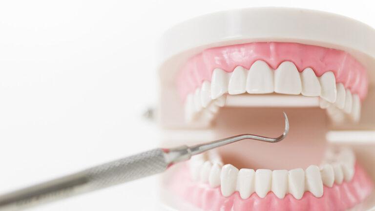 セルフ歯石取りは危険!リスクと正しい対策 #歯科衛生士の教室